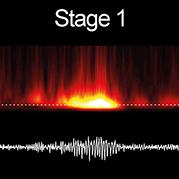 vign-17.10.31-epileptogenese.jpg