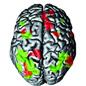 vign-cerveau.jpg